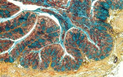 Investigadores del CSIC describen una nueva terapia para el tratamiento de la enfermedad inflamatoria intestinal