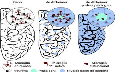 Investigadores del Ibis descubren una asociación entre la reducción local de oxígeno en el cerebro y el alzheimer