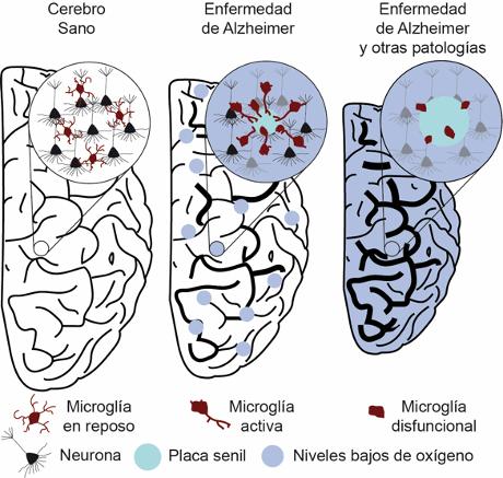 Investigadores del IBIS demuestran que la reducción local de los niveles de oxígeno provoca que el cerebro resista peor el avance del Alzheimer