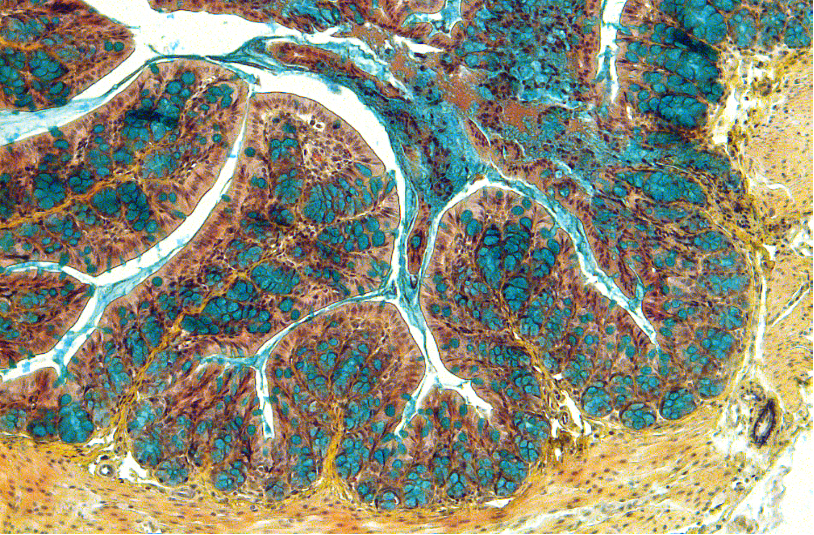 Científicos del CSIC describen una nueva terapia para la enfermedad inflamatoria intestinal